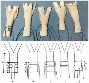 The Surgical Suturing Of The End Of A Tendon To A Bone Is