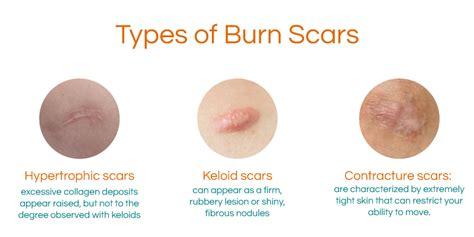 Is Aloe Vera Effective For Burn Scars?
