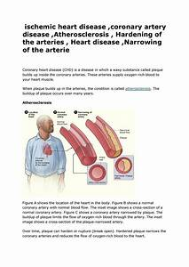 Ischemic Heart Disease  Coronary Artery Disease