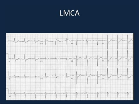 Subtle Signs Of Myocardial Ischaemia On Ecg. Oregon Business Registration. Hard Drive Data Rescue Top Ppc Search Engines. Online International Business Degree Programs. Citibank Business Credit Cards. Hitachi Capital Business Finance. Best Undergraduate Accounting Schools. Fully Integrated System Hotel Brussel Airport. Best Cosmetic Surgeon In Toronto