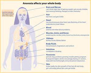 Anorexia Nervosa; No More…. - Heal Advice  Body Weight Anorexia Nervosa
