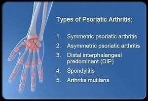 Is psoriasis a disease