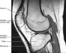 MRI Scan Knee