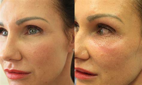 Plexr | Non-Surgical Plasma Eyelid Eye Bag Treatment