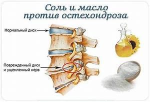Шейный остеохондроз при всд симптомы и лечение