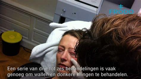 carboxytherapie ervaringen
