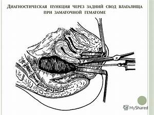 Лечение простатита пчелиным подмором рецепты отзывы