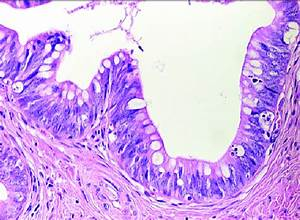 Adenocarcinoma In Situ  Ais   Endocervical Glandular