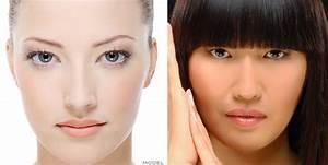 Asians vs. Caucasians - DoubleEyelidCrease