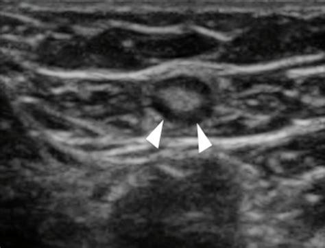 soft tissue images emergency ultrasonography