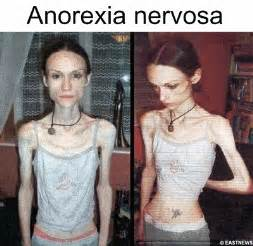 Anorexia nervosa - definition, causes, symptoms, prevention, testing ...  Body Weight Anorexia Nervosa