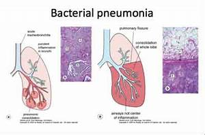Community Acquired Pneumonia ,Bacterial-Standard Treatment ...