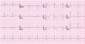 Dr  Smith U0026 39 S Ecg Blog  A Woman In Her 20s With Syncope