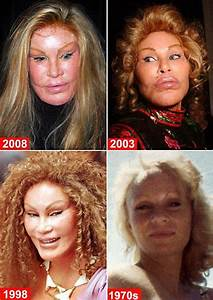 Chatter Busy: Jocelyn Wildenstein Plastic Surgery