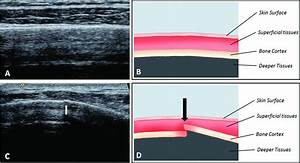 Imaging Of Rib Stress Fractures In Elite Rowers  The Promise Of Ultrasound