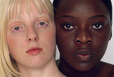 dark skin   evolved  protect  skin cancer
