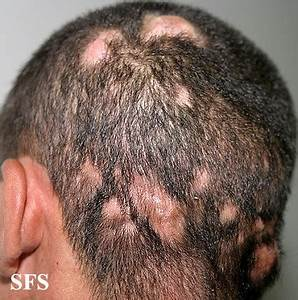 Itchy Scalp Pictures Causes And Treatment