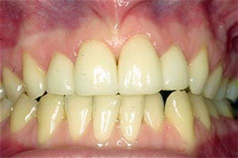 healthy gum color how healthy are your gums efp