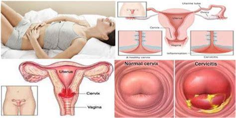 Rahim Wanita Sakit Obat Herbal Servisitis Atau Infeksi Serviks Sehat Alami