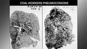Black Lung Basics  Inside The Miner U0026 39 S Malady