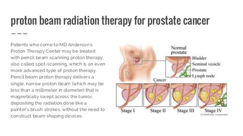 Proton Beam Radiation Therapy by Proton Therapy For Cancer