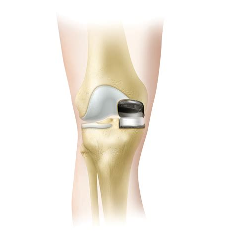 Partial Knee Replacement Implants