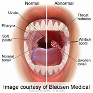 Tonsillectomy Might Be Worth It for Some Adults – WebMD