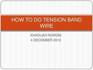 How To Do Tension Band Wire