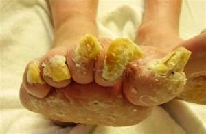 Солидол грибок на ногах