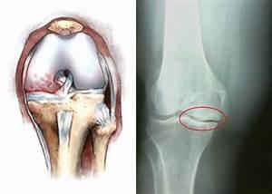 Боль и хруст при сгибании коленного сустава симптомы