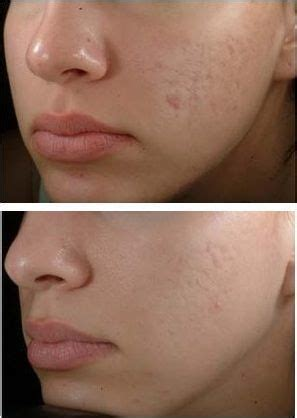 cover  acne scars  makeup beauty tips  tricks