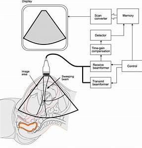 Schematic Design Of An Ultrasound Imaging Equipment