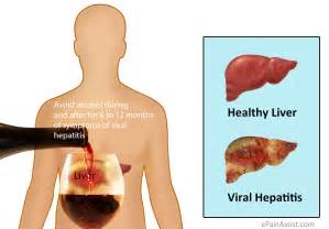 The three basic forms of viral hepatitis that we will be discussing in ...  Hepatitis Infections