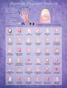 Ayurvedic Fingernail Analysis Poster Ayurveda Posters