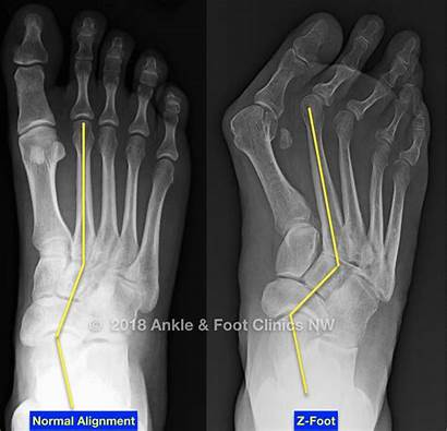 Adductus Metatarsus Foot Surgery Ankle Considered