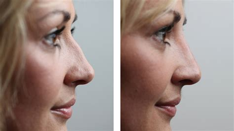 smaller nose  makeup  surgery makeup vidalondon