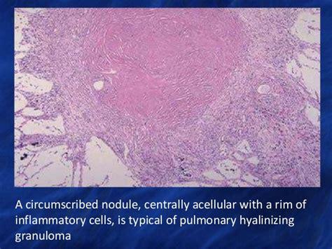 advances  lung tumors  tumor  lesions