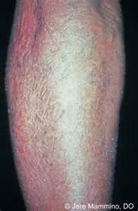 Dry Skin Eczema On Legs