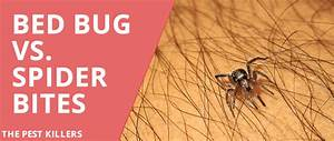 Bed bug vs Spider Bite - All you need to know - ThePestKillers