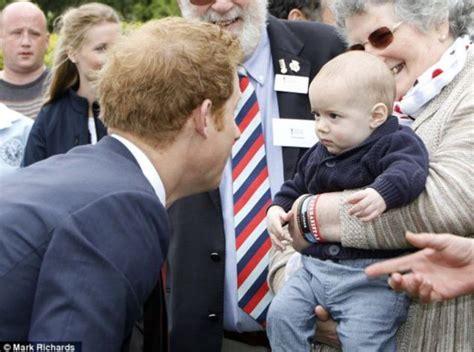 Prince Harry Thinning Hair