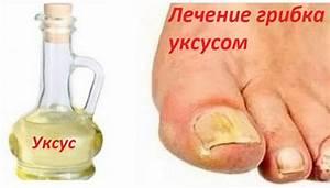 Кандид от грибка ногтей на ногах отзывы