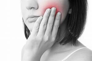 Symptome Dent De Sagesse : sympt mes d 39 une dent pourrie atteinte d 39 une infection chez un chien fiche pratique sur ~ Maxctalentgroup.com Avis de Voitures