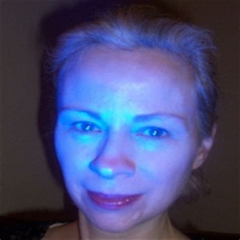 blue light therapy laser acne removal information on laser acne removal