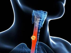Esophageal Cancer Survivors Need Monitoring For 10 Years