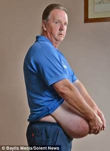 Man with hernia size of FOOTBALL accidentally wiped from surgery waiting list Daily Mail Online