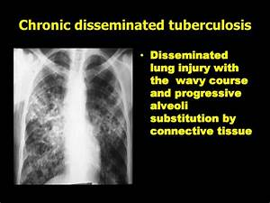 Primary And Secondary Tuberculosis   Lecture 5