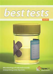 Antibiotic Chart Interpreting Urine Dipstick Tests In Adults Best Tests