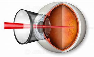 Retinal laser treatment - #SUVR0016 | Stock eye images