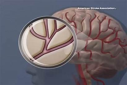 Stroke Clot Cardiac Following Ischemic Patients Animation