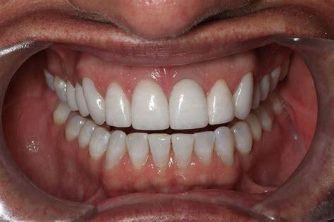 smile by design violations of smile design 5 overcontoured teeth
